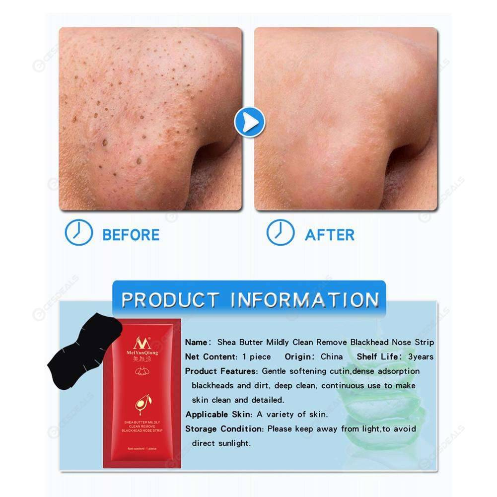 Blackhead Remover Nose Mask Deep Cleansing Pore Peeling Acne Masks (1pc)