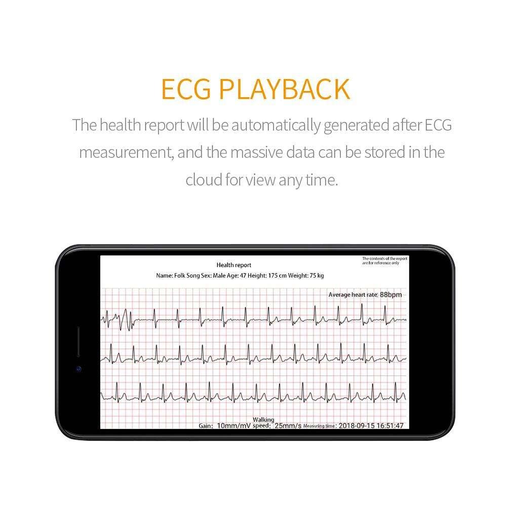 E58 1.3 Inch TFT Smart Bracelet ECG+PPG Monitoring HRV Report(Black TPU)